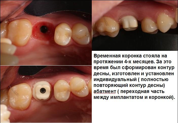 Сколько по времени стоит коронка на зубе