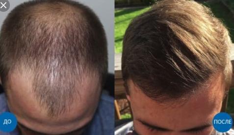 Hair Transplante in Turkey