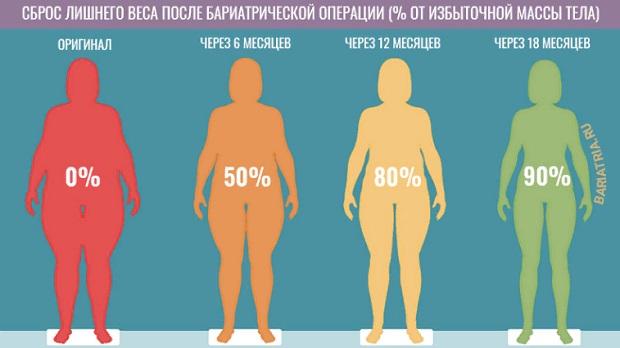 бариатрические операции bariatria.ru